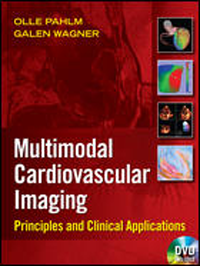 Multimodal Cardiovascular Imaging- Principles & Clinical Applications(With DVD-ROM)