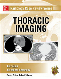 Thoracic Imaging(Radiology Case Review Series)