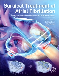 Surgical Treatment of Atrial Fibrillation- A Comprehensive Guide to Performing the Cox Maze IVProcedure