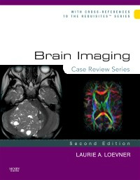 Brain Imaging, 2nd ed.- Case Review Series