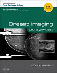 Breast Imaging, 2nd ed.- Case Review Series
