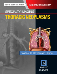 Thoracic Neoplasms(Specialty Imaging Series)