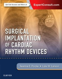 Surgical Implantation of Cardiac Rhythm Devices