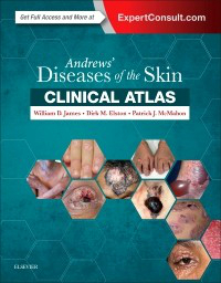 Andrews' Diseases of the Skin- Clinical Atlas