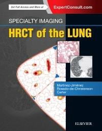 HRCT of the Lung, 2nd ed.(Specialty Imaging Series)