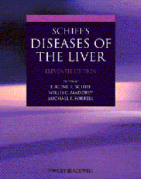 Schiff's Diseases of the Liver, 11th ed.