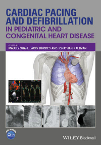 Cardiac Pacing & Defibrillation in Pediatric &Congenital Heart Disease