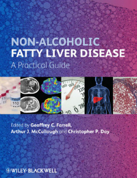 Non-Alcoholic Fatty Liver Disease- A Practical Guide