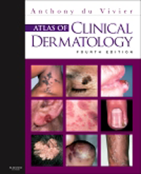 Atlas of Clinical Dermatology, 4th ed.