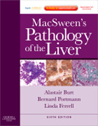 MacSween's Pathology of the Liver, 6th ed.(Vital SourceE-Book)