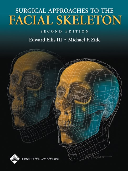 Surgical Approaches to the Facial Skeleton, 2nd ed.
