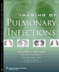 Imaging of Pulmonary Infections