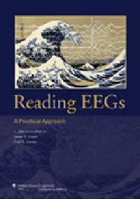 Reading EEGs- Practical Approach