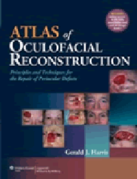 Atlas of Oculofacial Reconstruction- Principles & Techniques for the Repair of PeriocularDefects