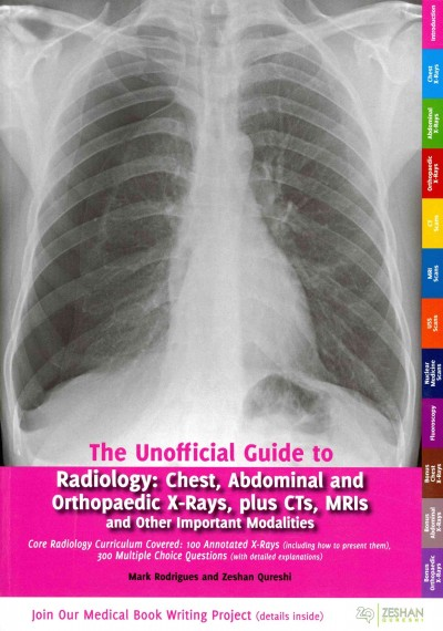 Unofficial Guide to Radiology- Chest, Abdominal & Orthopaedic X-Rays, Plus Cts, Mris& Other Important Modalities