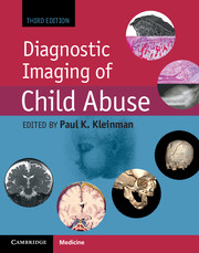 Diagnostic Imaging of Child Abuse, 3rd ed.
