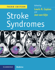 Stroke Syndrome, 3rd ed.