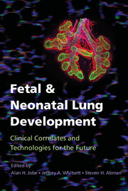 Fetal & Neonatal Lung Development- Clinical Correlates and Technologies for the Future