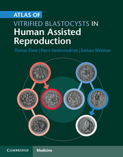 Atlas of Vitrified Blastocysts in Human AssistedReproduction