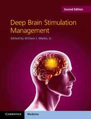 Deep Brain Stimulation Management, 2nd ed.