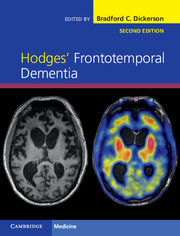 Hodges' Frontotemporal Dementia, 2nd ed.