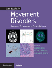 Case Studies in Movement Disorders- Common & Uncommon Presentations