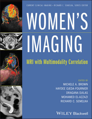 Women's Imaging- MRI with Multimodality Correlation
