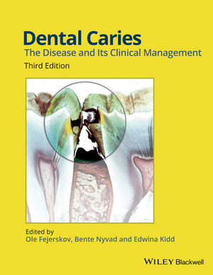 Dental Caries, 3rd ed.- Disease & Its Clinical Management