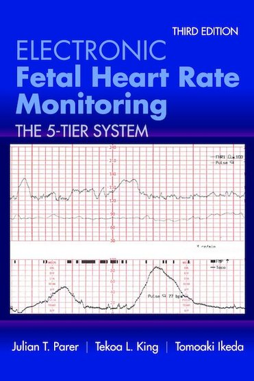Electronic Fetal Heart Rate Monitoring, 3rd ed.-The 5-Tier System