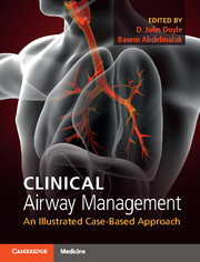 Clinical Airway Management- An Illustrated Case-Based Approach