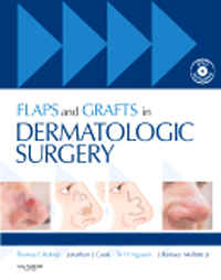 Flaps & Grafts in Dermatologic Surgery, with DVD