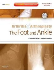 Arthritis & Arthroplasty: Foot & AnkleWith DVD