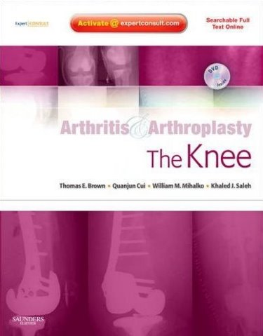 Arthritis & Arthroplasty: Knee, with DVD