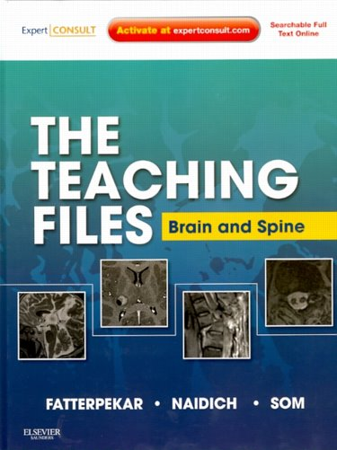 Teaching Files: Brain & Spine Imaging