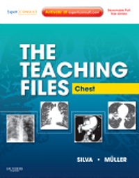 Teaching Files: Chest, with Expert Consult