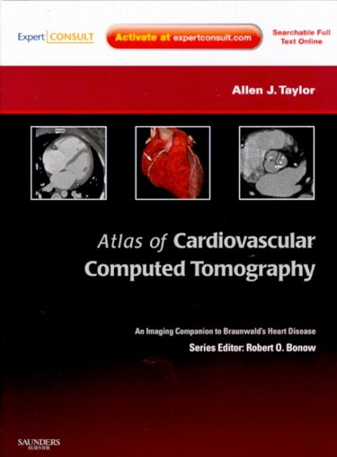 Atlas of Cardiovascular Computed Tomography with ExpertWith Expert Consult- Imaging Companion to Braunwald's Heart Disease