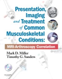 Presentation, Imaging & Treatment of CommonMusculoskeletal Conditions- MRI-Arthroscopy Correlation(With DVD-ROM)