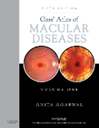 Gass' Atlas of Macular Diseases, 5th ed., in 2 vols.(Stereoscopic Viewer Included)With Expert Consult Premium ed.