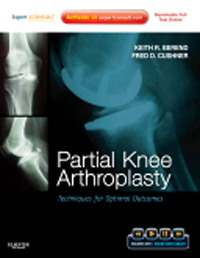 Partial Knee Arthroplasty- Techniques for Optimal Outcomes with DVD