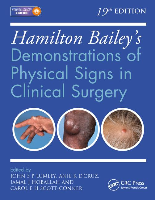Hamilton Bailey's Demonstrations of Physical Signs inClinical Surgery, 19th ed.