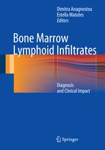 Bone Marrow Lymphoid Infiltrates- Diagnosis & Clinical Impact