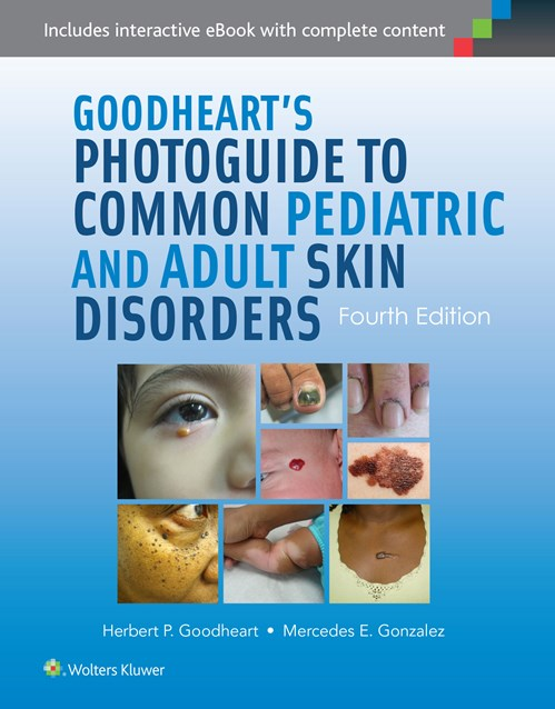 Goodheart's Photoguide to Common Pediatric & Adult SkinDisorders, 4th ed.