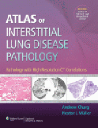 Atlas of Interstitial Lung Disease Pathology- Pathology with High Resolution CT Correlations