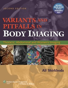 Variants & Pitfalls in Body Imaging, 2nd ed.- Thoracic, Abdominal & Women's Imaging(Vital Source E-Book)