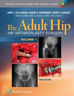 Adult Hip, 3rd ed., in 2 vols.- Hip Arthroplasty Surgery