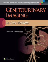 Genitourinary Imaging- A Core Review