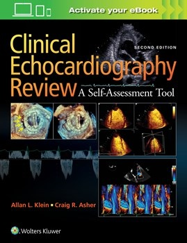 Clinical Echocardiography Review, 2nd ed.- A Self-Assessment Tool