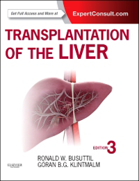 Transplantation of the Liver, 3rd ed.