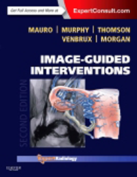 Image-Guided Intervention, 2nd ed.(Expert Radiology Series)(With Online Access)