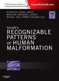Smith's Recognizable Patterns of Human Malformation,7th ed.(With Online Access to Expert Consult)